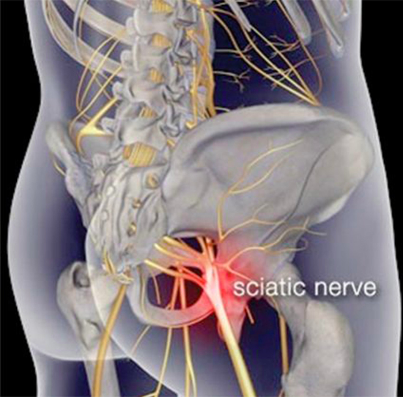 Защемление нерва в спине: лечение в домашних условиях 58