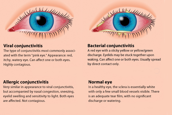 what is pink eye what are pink eye symptoms   care