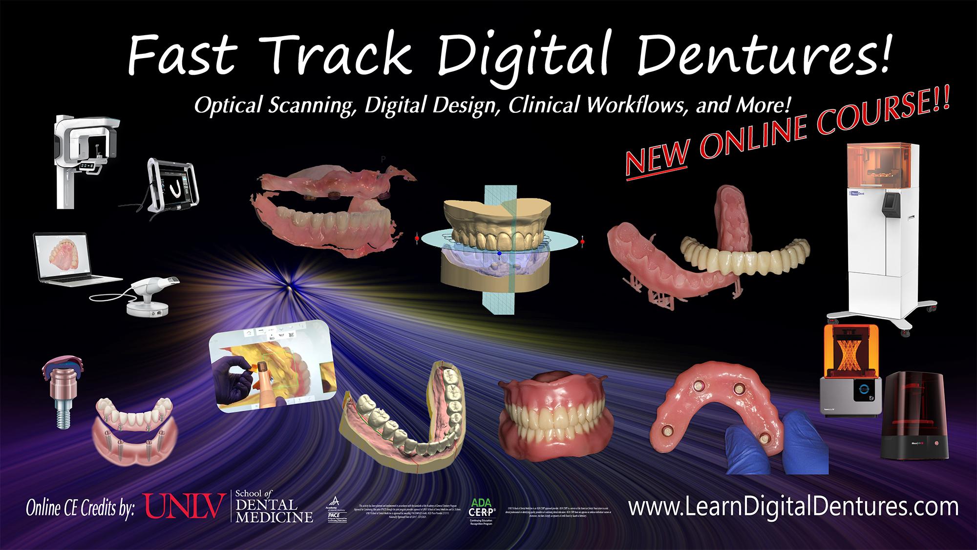 Fast Track Digital Dentures   Digital Dental CE