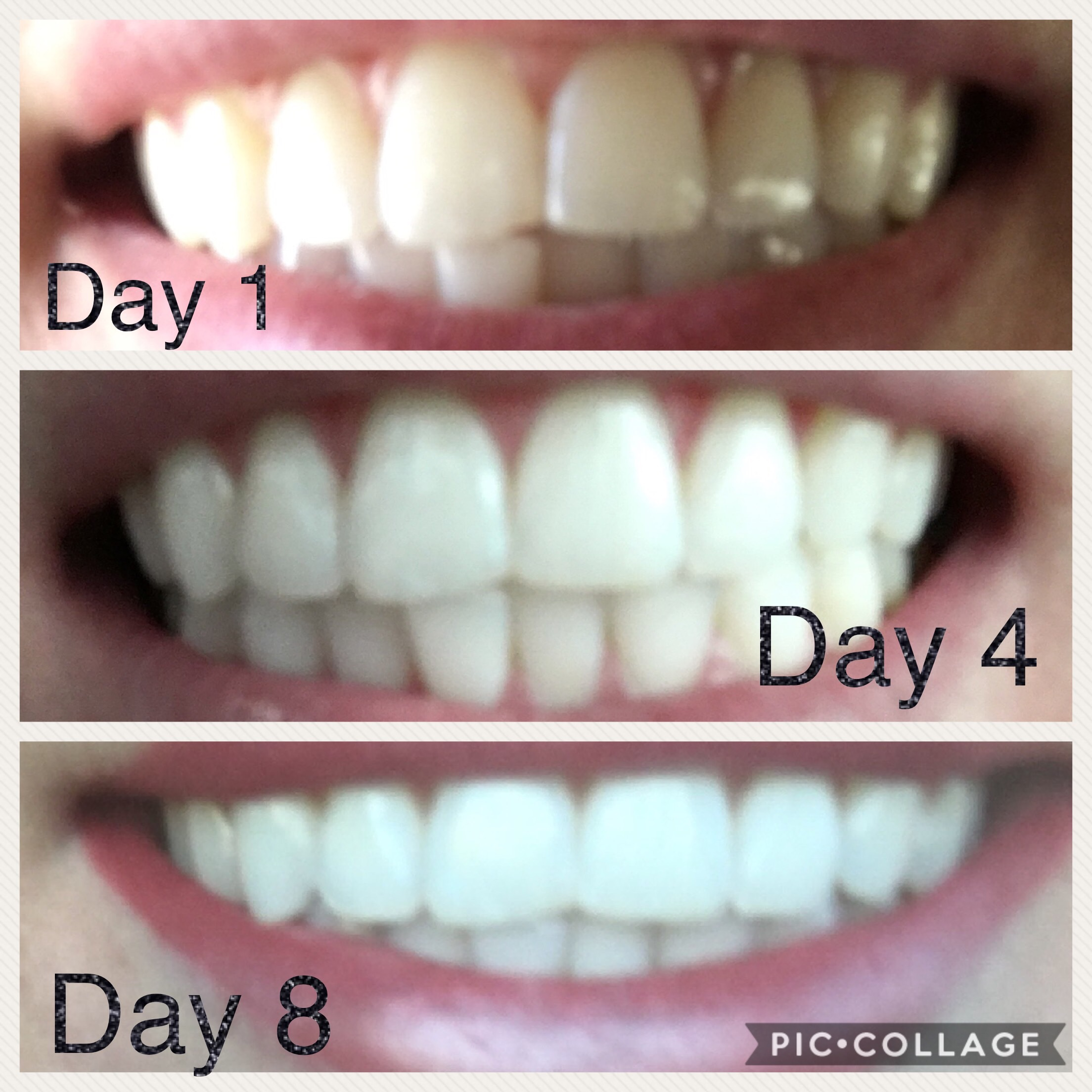 Tooth whitening paste: reviews 11