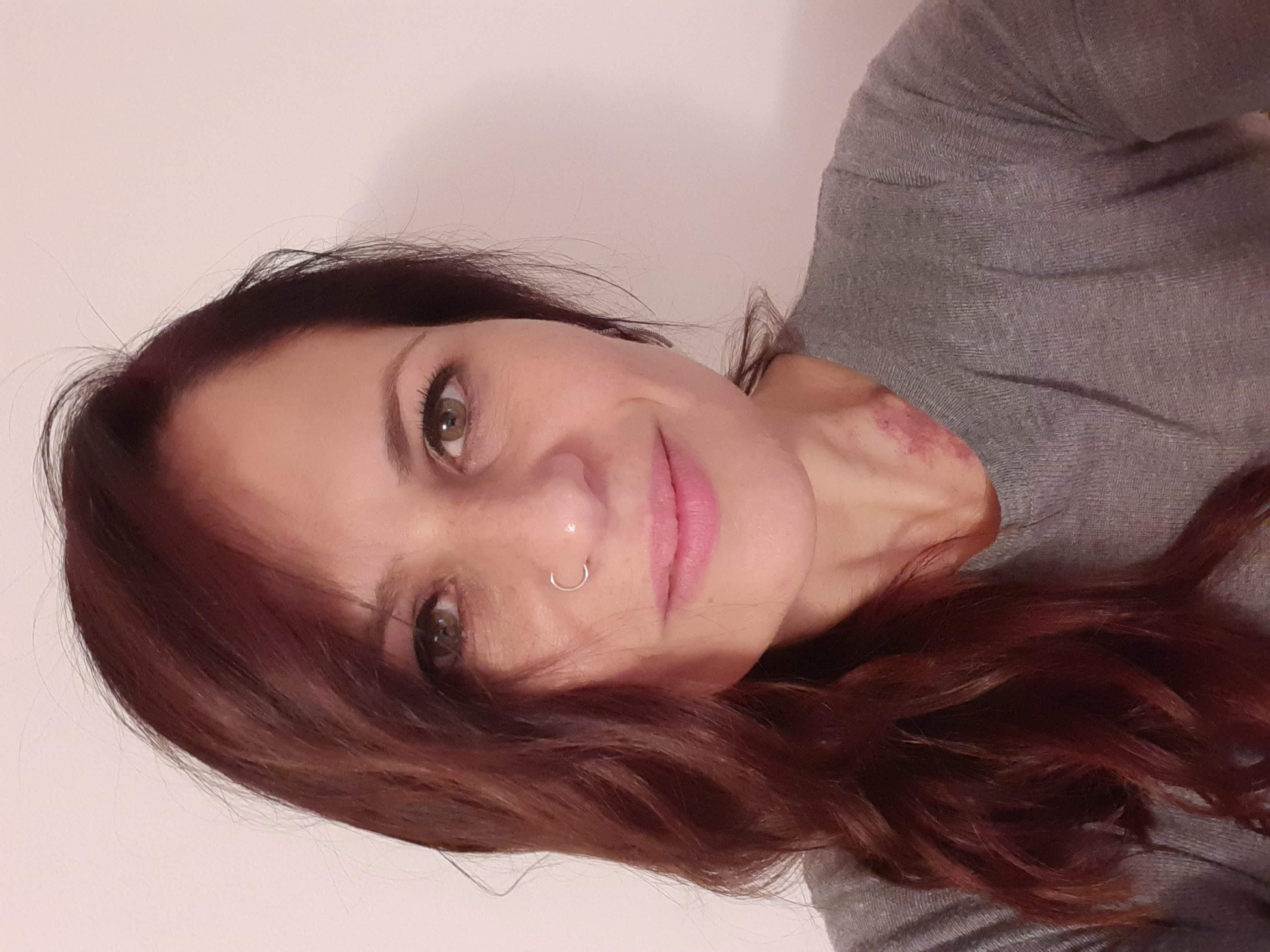Lorenza Moscarella