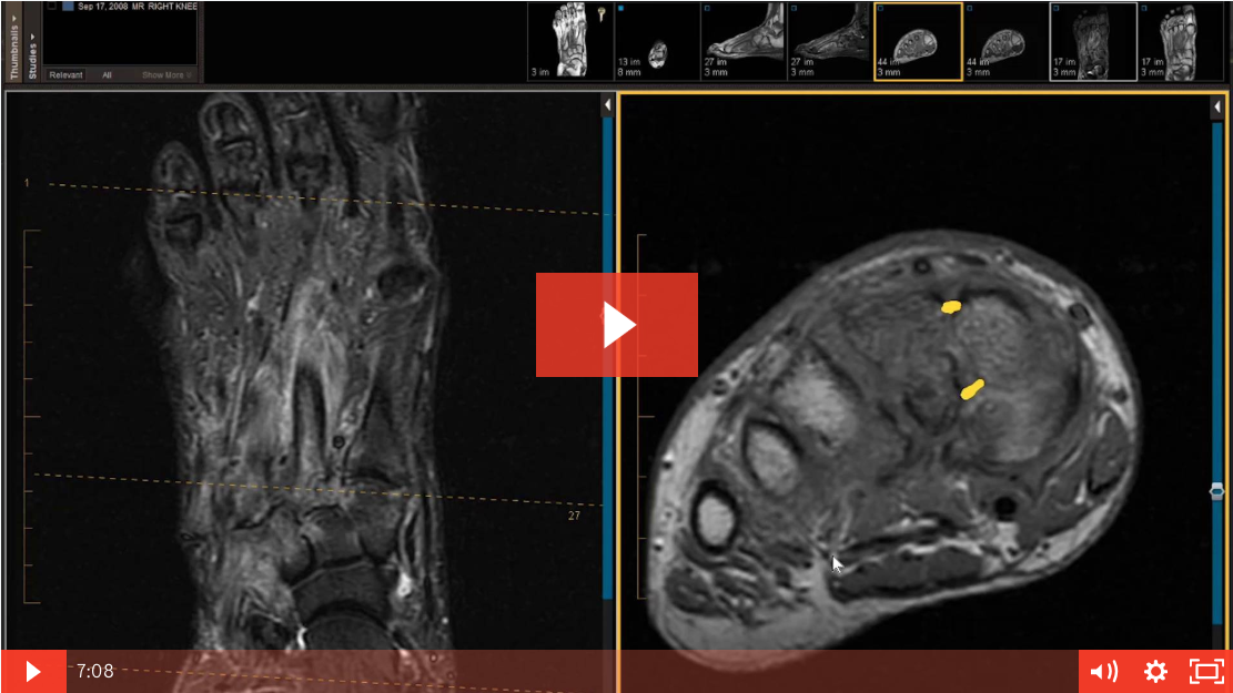 Case Review: 52 Year Old Female - Fell and Now Has Inversion Injury