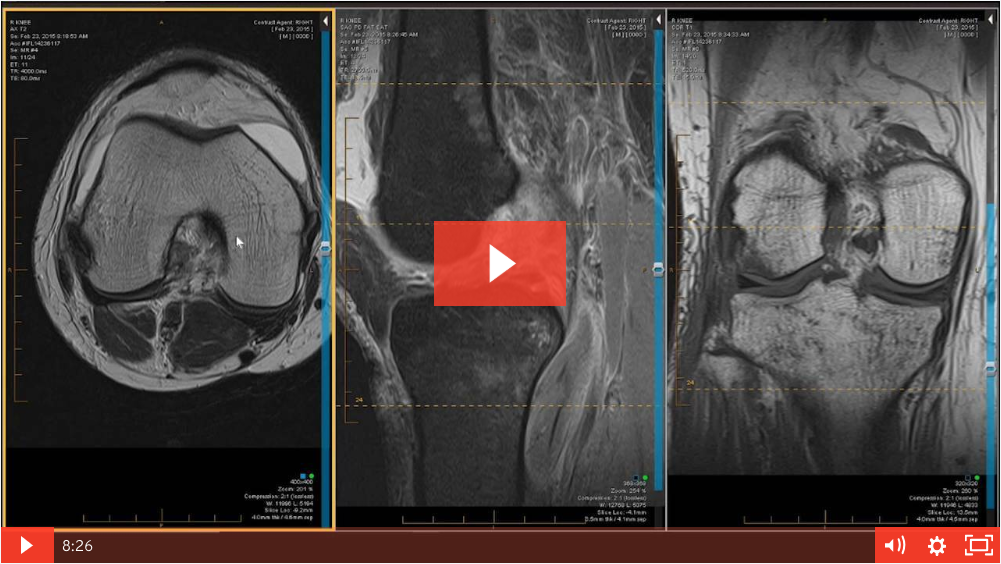 Knee Case Review: 54 year old Male with a Twisting Injury