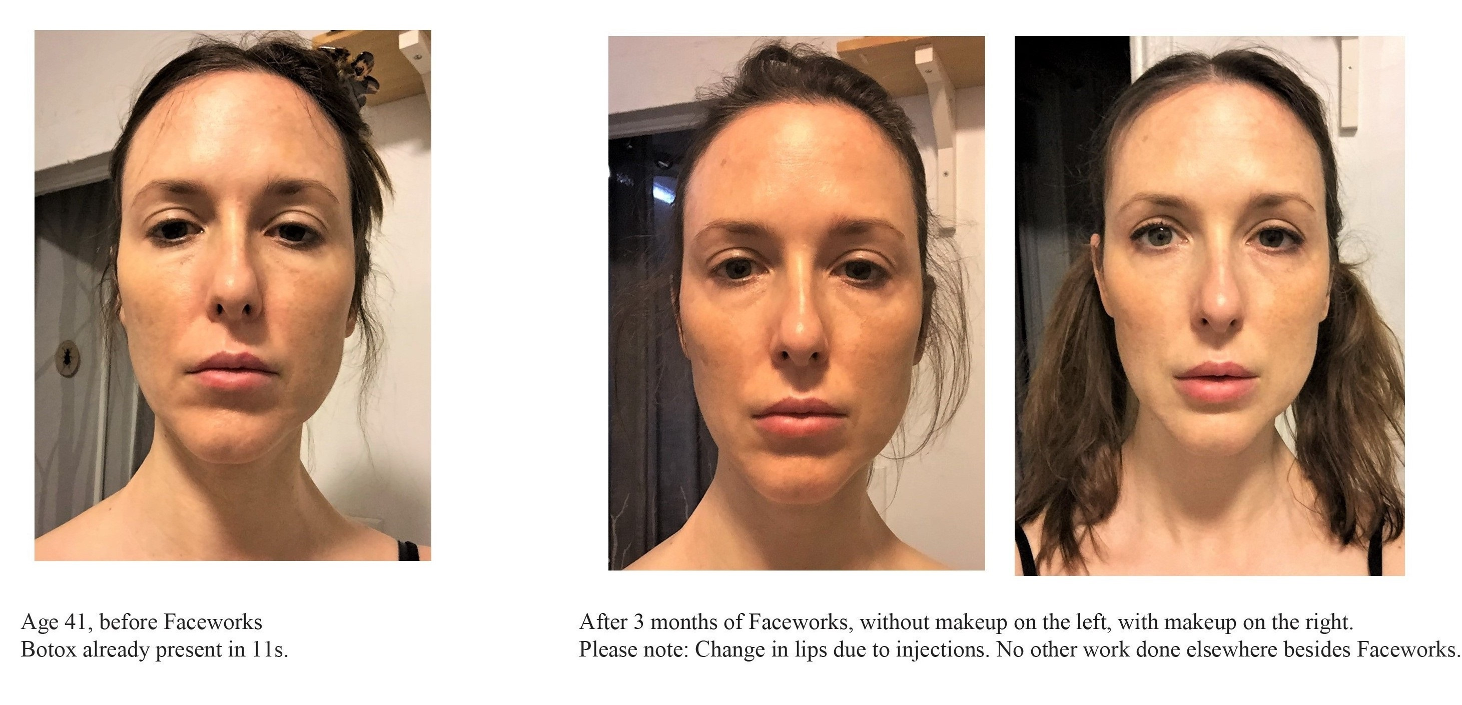 Kerry, USA Before & After Faceworks face exercises
