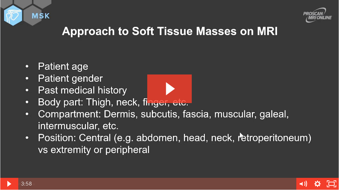 Approach to Soft Tissue Masses MRI