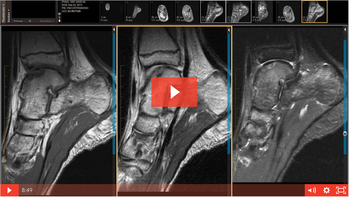 Case Review: Teenager with Ankle Pain - Rule Out Fracture/OCD