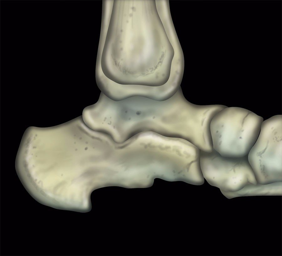 MRI Mastery Series: Ankle | MRI Online