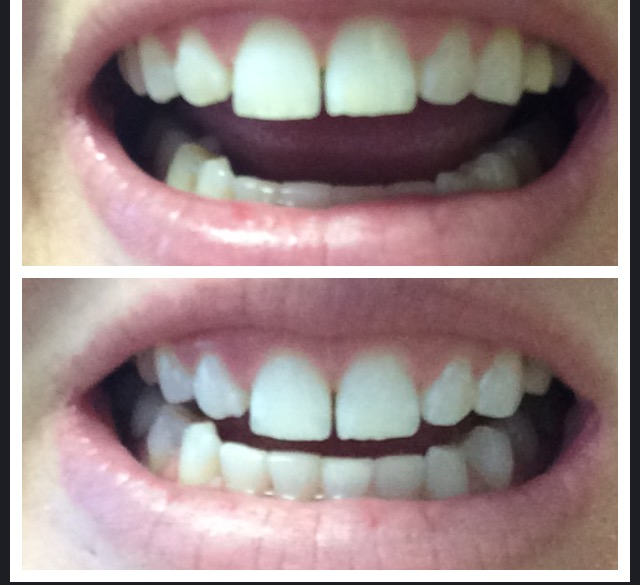 Opalescence Boost Teeth Whitening System Reviews