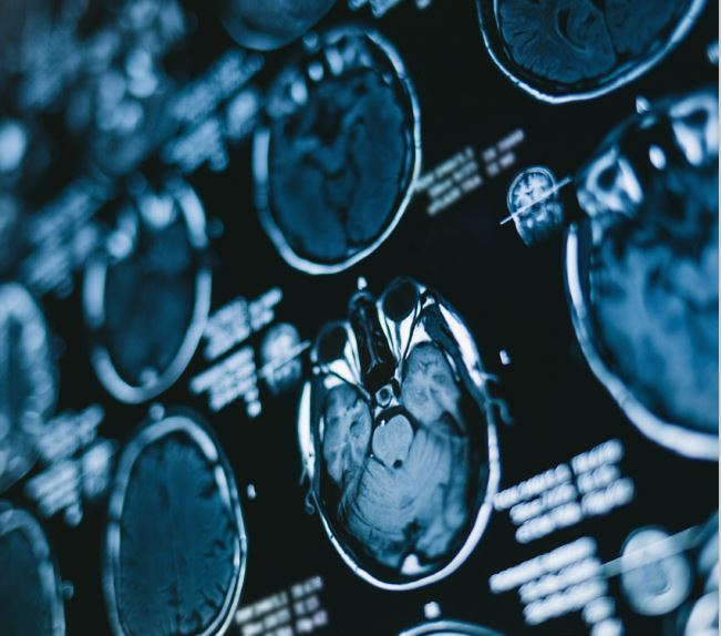Imagenología en la especialidad de neurología