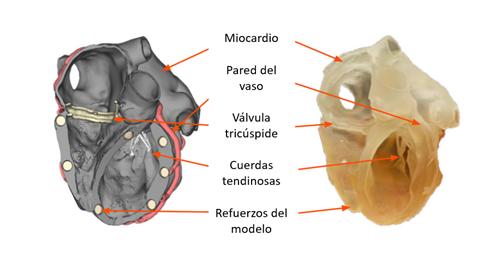 Ejemplo de impresión de varios elementos con materiales con características anatómicas
