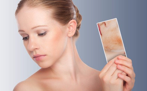 How to Control Rosacea Naturally